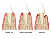 parodontitis tooth plaque vector illustration