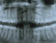 retinierte Zähne